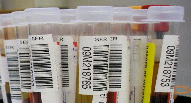 Metody i narzędzia badania obecności środków odurzających w organizmie